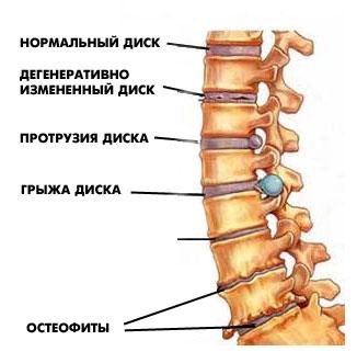 unguente pentru osteochondroza coloanei lombare tratamentul artrozei la marino