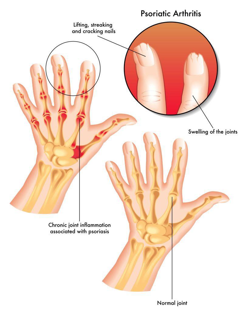 artrită articulară și tratament