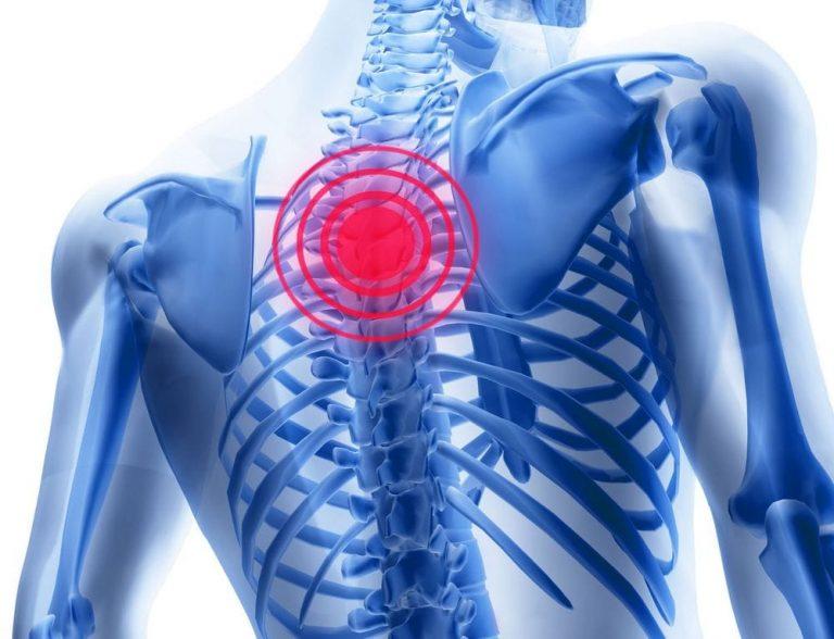 Unguente analgezice pentru osteochondroza regiunii toracice, Dispnee în osteocondroză