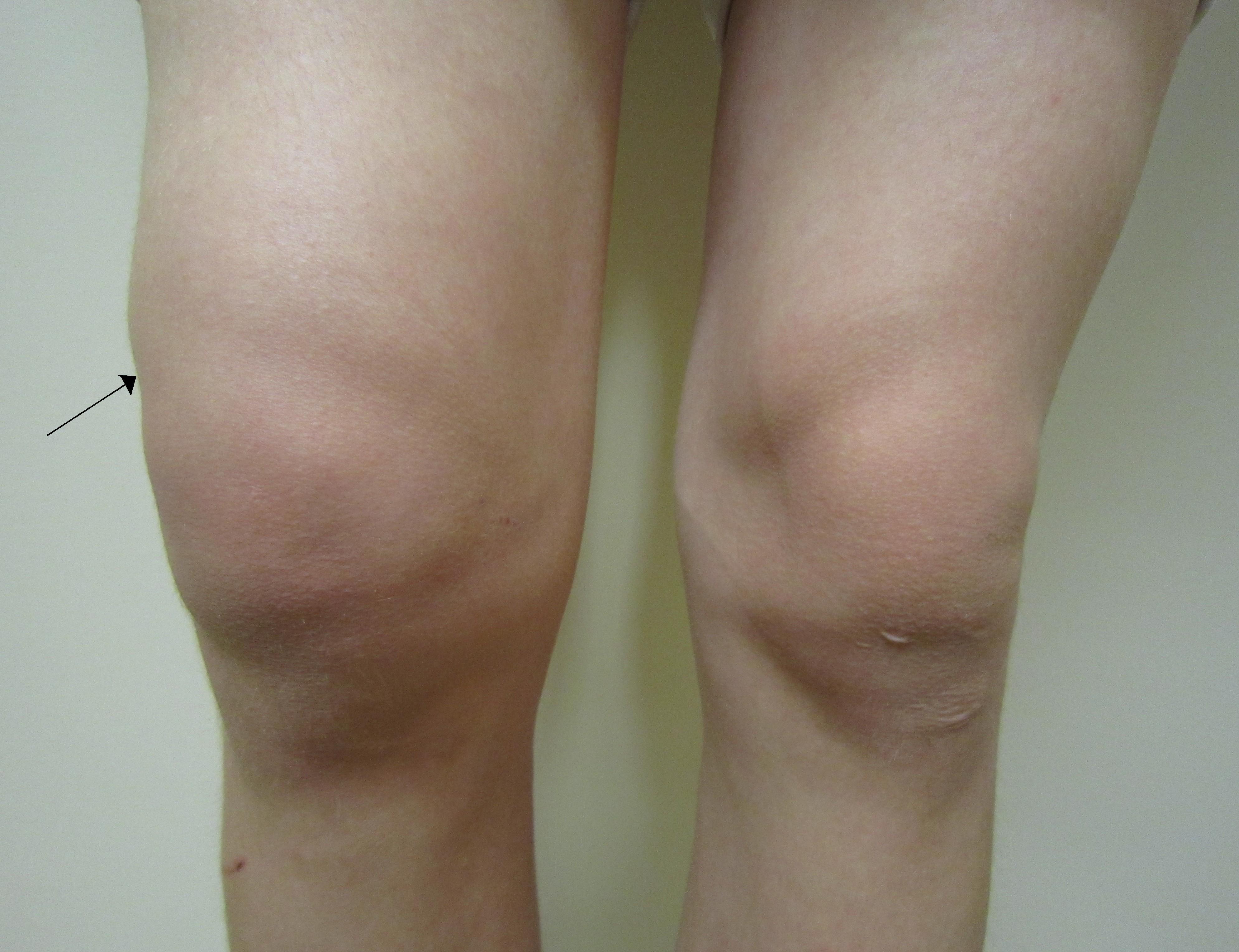 istoric de sinovită a genunchiului