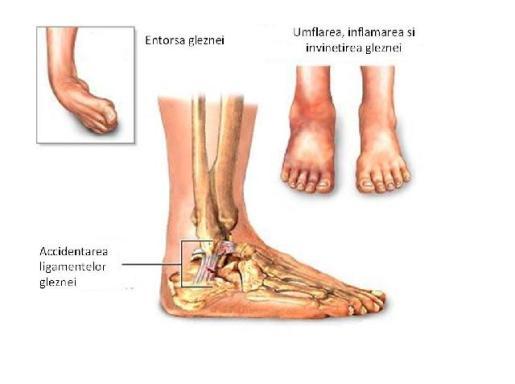 osteochondroza medicamentelor pentru tratamentul coloanei lombare inflamația articulației pe degetul de la picior