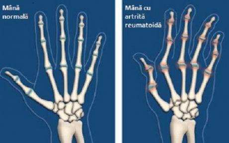 articulațiile rănesc picioarele de la alergare ce medicamente tratează artroza articulației șoldului