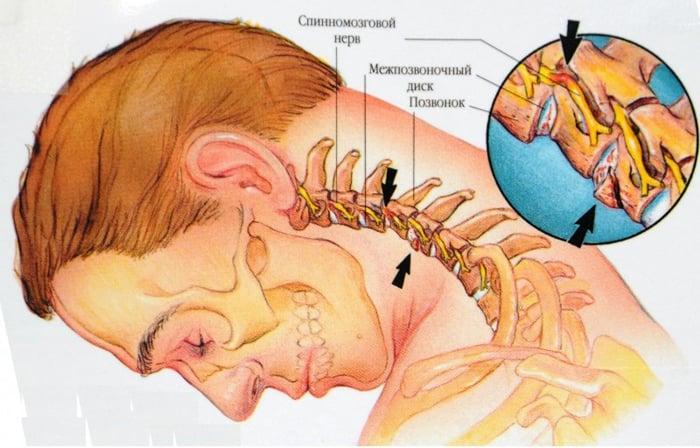 Ce compresă va ajuta cu osteochondroza - Bursită -