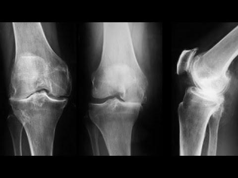 artroza genunchiului grad 3 medicină de restaurare comună