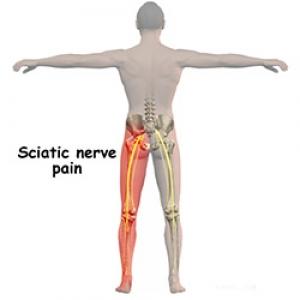 tratament pentru ciupirea nervului umăr
