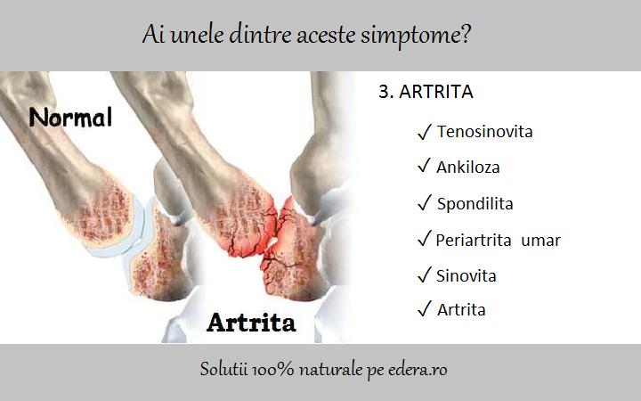 Sinovita tratamentului articulației genunchiului. Tratamentul de sinovita genunchi cronice