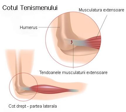tratamentul epicondilitei unguentului articulației cotului