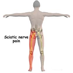 durerea de șold radiază până la genunchi