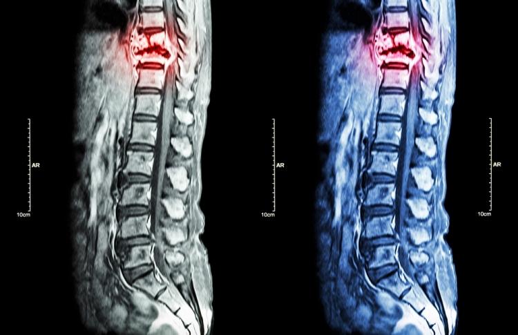 Tratamentul bolilor coloanei vertebrale și articulațiilor din Podolsk, Almag - plus