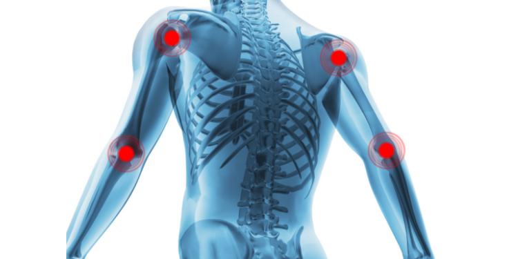 tratamentul artritei la genunchi