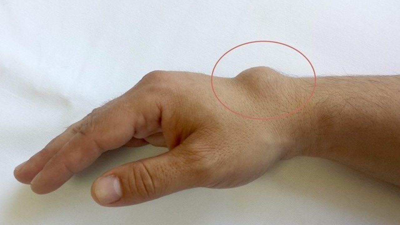 Umflarea articulației nu trece, Genunchi umflat