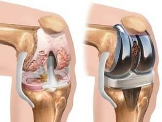 dureri de proteză la șold