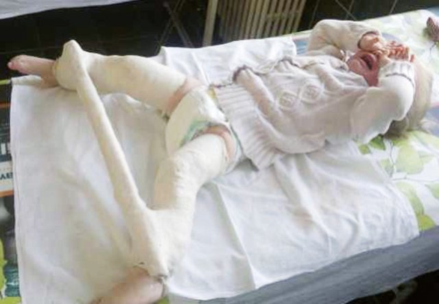 Displazia de Sold la Copii – Cauze, Investigatii, Tratament   Bebe Strumf