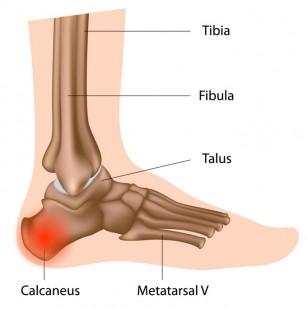 tratamentul articulațiilor călcâiului osteoartroza genunchiului decât a trata