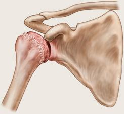Artroza în stadiu a articulației umărului, Sună la Arcadia