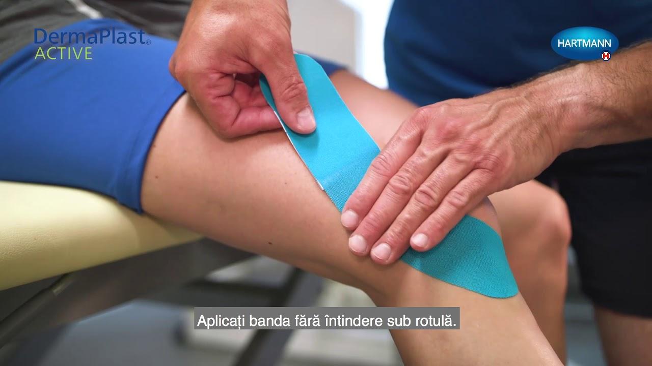 bandă kinesio pentru artrita genunchiului