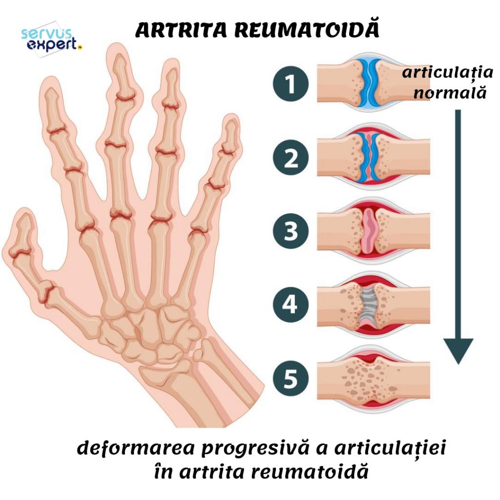 cum să păstrați articulațiile cu artrita reumatoidă
