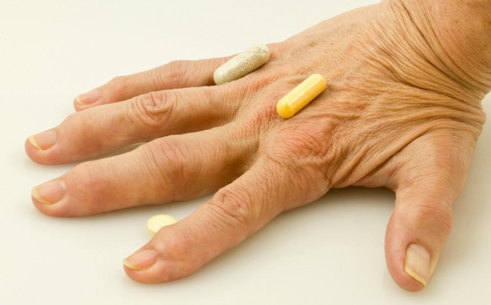 Poliartrita reumatoida | tranzactiiimobiliareonline.ro