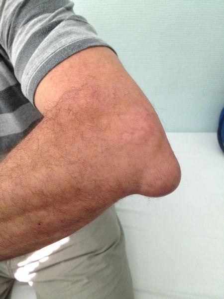 Bursita Cot - Ortopedie ArcaLife