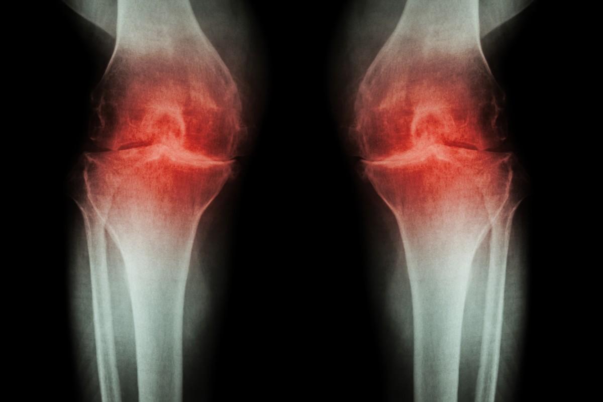 medicament pentru introducerea în articulație cu artroza