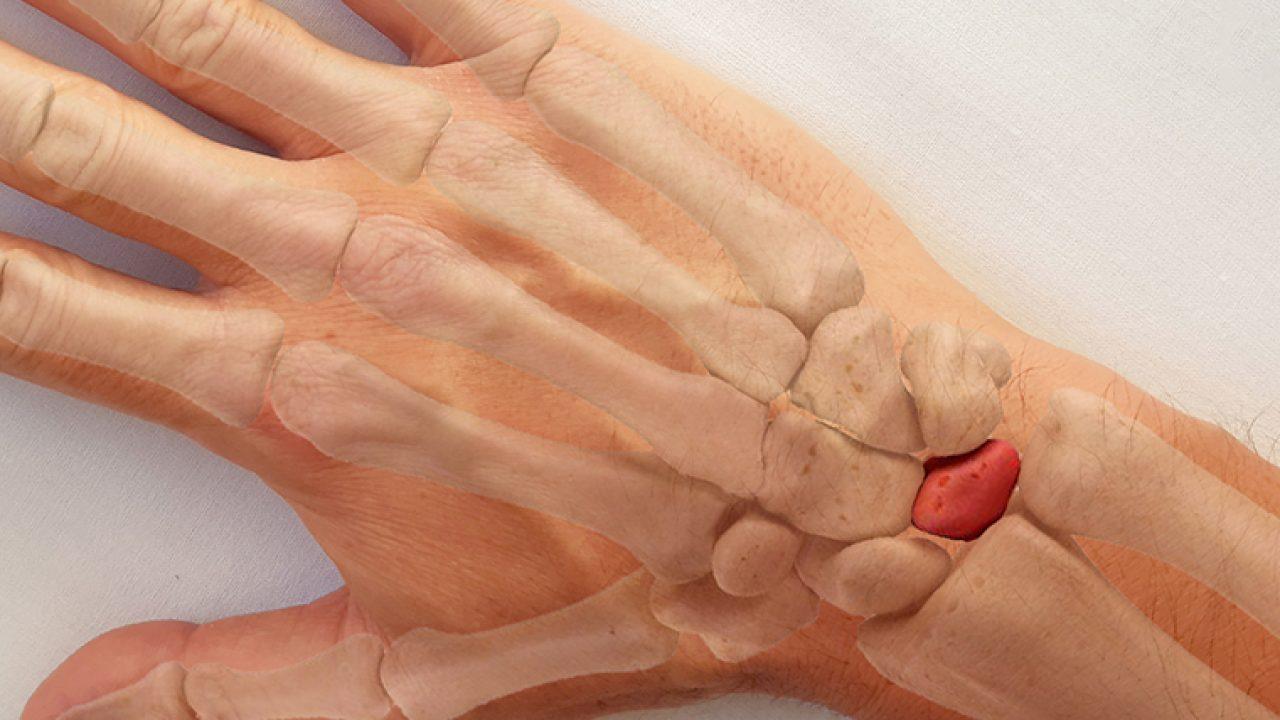 cum se tratează artroza gleznei de gradul II artroza gradului 2 al articulației genunchiului cu tratament