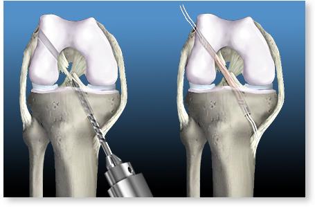 timpul de recuperare după ruperea ligamentelor articulației genunchiului indometacină pentru artroza articulației șoldului