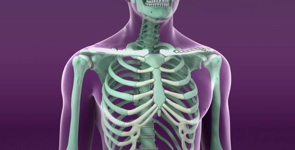 Articulațiile sternului doare. Durerea în piept | Arcadia Spitale si Centre Medicale