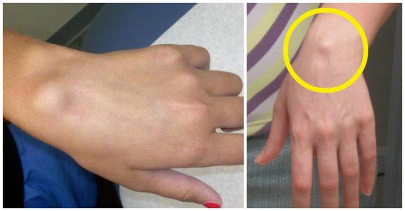 cum să trateze umflături pe articulațiile mâinilor durere la gleznă o lună mai târziu
