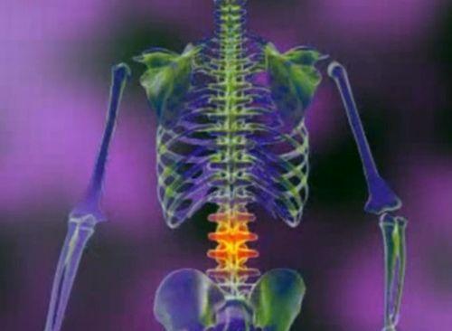 dureri articulare de fisurare la nivelul coloanei vertebrale