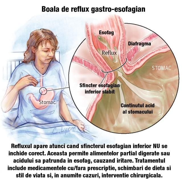 stomacul și durerea în articulațiile picioarelor