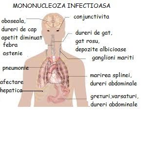 dureri articulare cu virusul Epstein Barra
