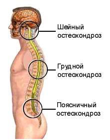 osteochondroza medicamentelor pentru tratamentul coloanei toracice