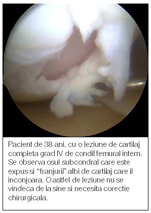 Articulaţii şi cartilaje regenerate pe cale naturală, obţinute de cercetători