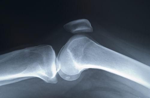 simptome de osteoporoză și tratamentul articulației șoldului