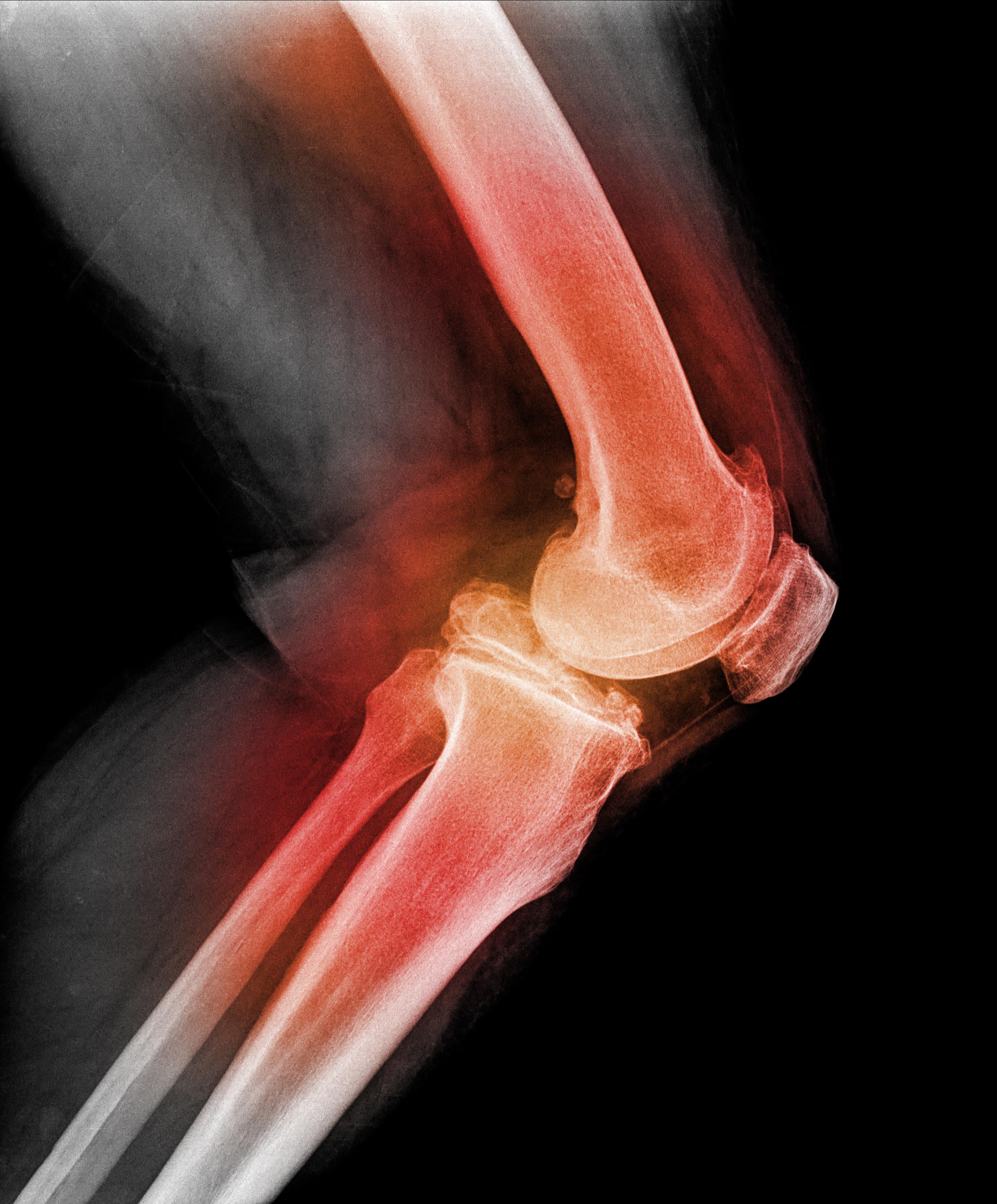 fonoforeza pentru artrita genunchiului clinica de tratament a durerii articulare