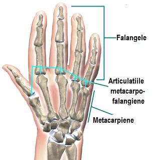 tratamentul radiologic al articulațiilor tratamentul poliartritelor reumatoide
