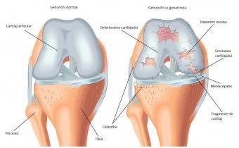 de ce rănesc articulațiile picioarelor cu leziuni la genunchi