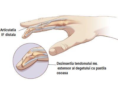 Află de ce doare degetul mic