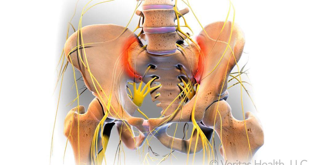 articulația doare cu adevărat anti-umflarea articulațiilor