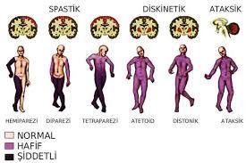 Siofor și artroză