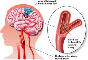 După un accident vascular, durerea articulației umărului - tranzactiiimobiliareonline.ro
