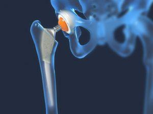 Artroza 1 Tratamentul articulației șoldului de 2 grade
