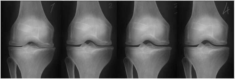 Anestezia dureri articulare