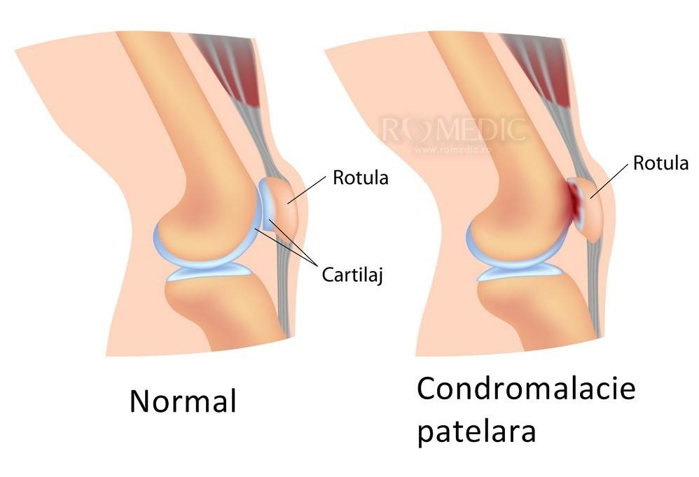 articulația genunchiului doare în timpul alergării
