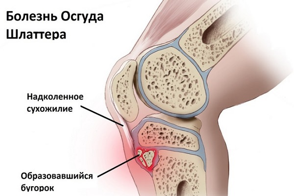 consecințe ale inflamației genunchiului