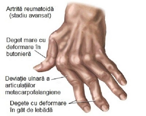 cum pot ameliora durerile articulare ale degetelor