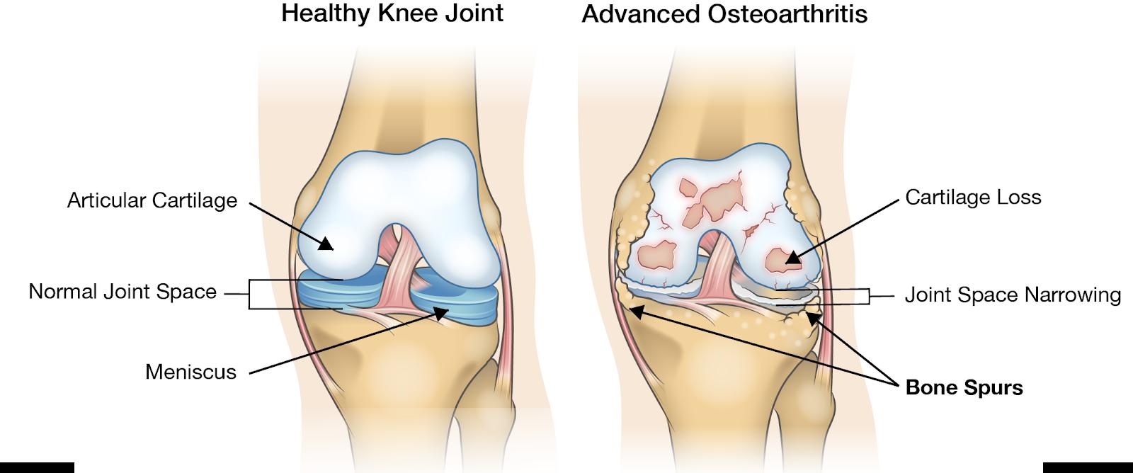 diferența gonartrozei de artroza articulației genunchiului osteoartroza codului de tratament al articulației genunchiului