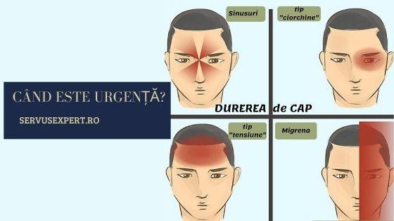 Durerile de cap sau Cefaleea