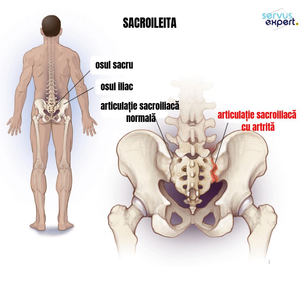 SACROILEITA: durere de spate și șold - Servus Expert