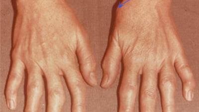 umflarea articulației pe braț tratament comun asupra kashirka